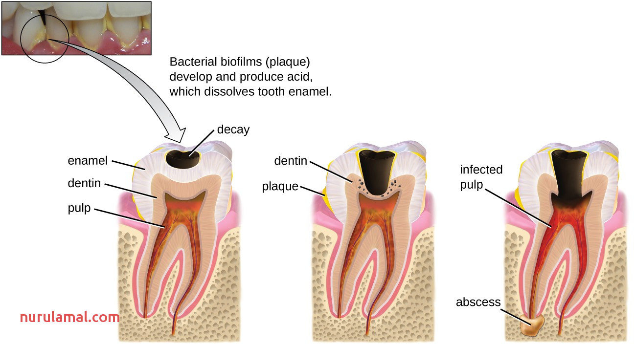 Microbial Diseases Of the Mouth and oral Cavity
