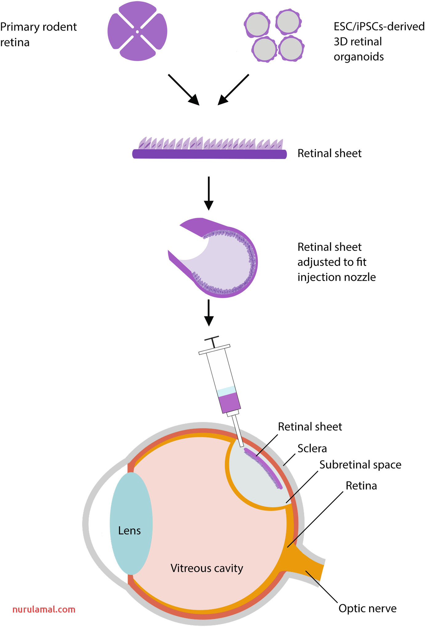 Surgical Approaches for Cell therapeutics Delivery to the